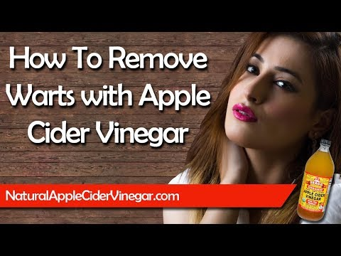 How to Naturally Remove Warts with Apple Cider Vinegar