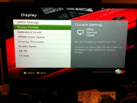 Xbox 360 - How to turn Display Discovery Back on