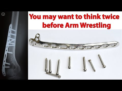 Part2. How I broke my Humerus during Arm Wrestling. Removal of the Plate and Screws