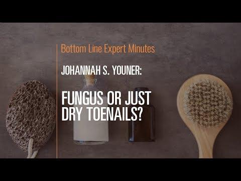 Fungus or Just Dry Toenails?