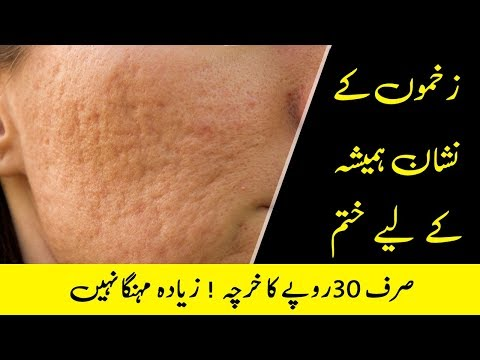 Natural Ways to Remove Scar Tissue