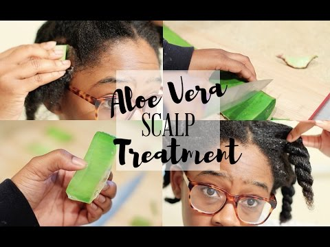 HOW TO STOP DRY SCALP & DANDRUFF  | Aloe Vera Scalp Treatment