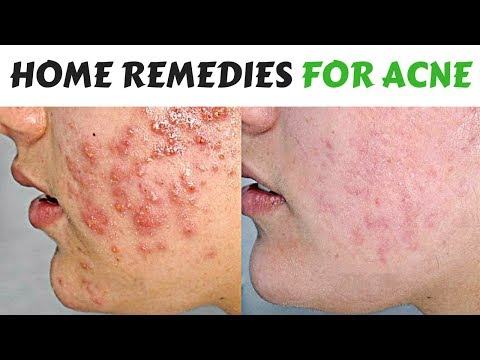 Teenage Acne Treatment With Home Made Remedies |  How To Get Rid Of Pimples Fast