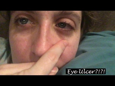 I HAD AN EYE ULCER!!! | Vlogmas 2016 DCP