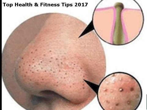 How to get rid of blackheads and whiteheads on nose, face, chin, lips