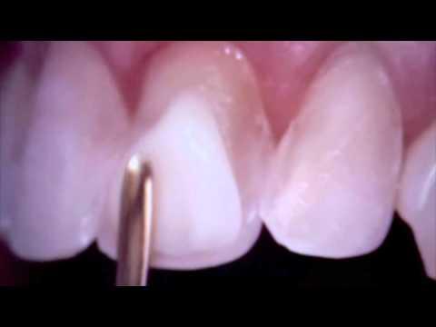 Teeth Bonding - Teeth Bonding  for a Smile Makeover
