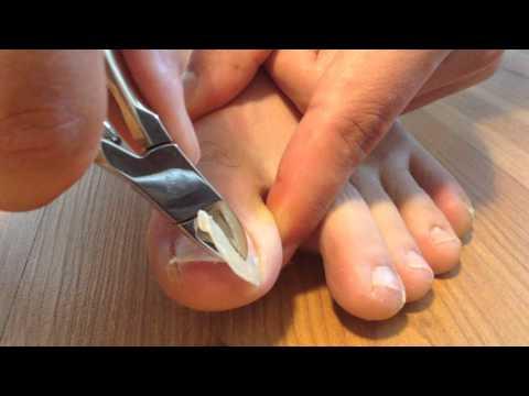 Cutting his long toenails
