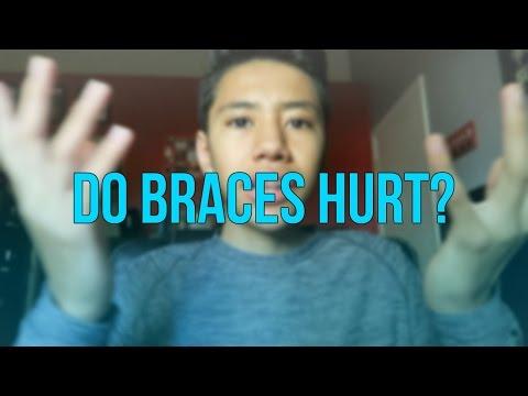 Do Braces Hurt?