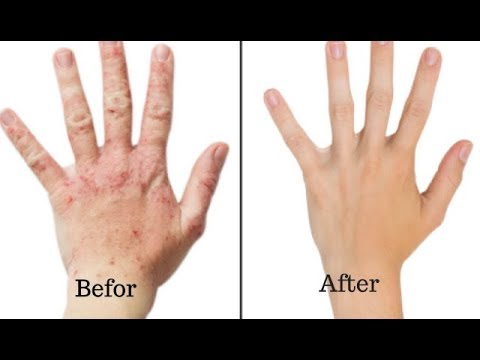 How to Care for your Skin with Baking Soda – Baking Soda for Skin Rashes