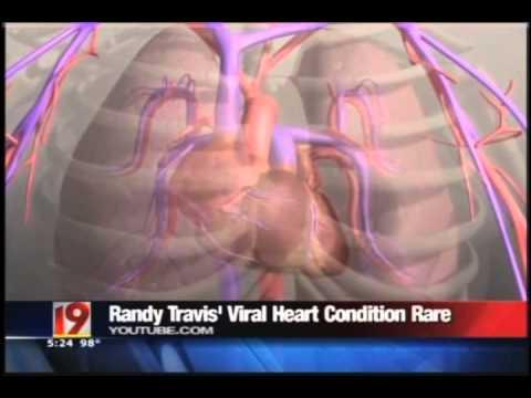 Understanding Viral Cardiomyopathy