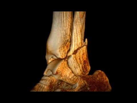 Lateral Malleolar Fracture of the Ankle