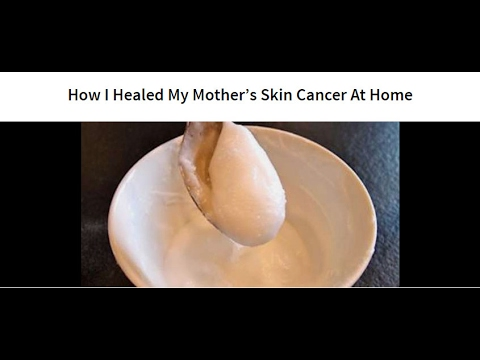 How I Healed My Mother's Skin Cancer At Home