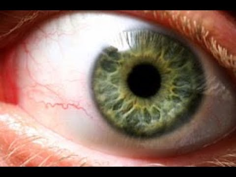 Yellow spots and thicker vessels underneath the retina could be early signs of this disease