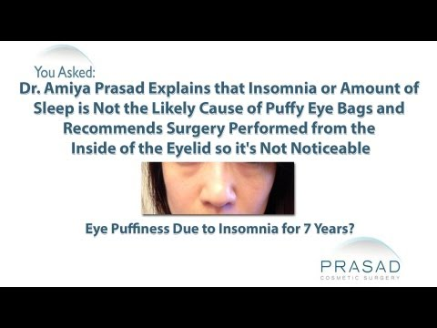 Why Lack of Sleep or Insomnia are Not Likely Causes of Permanently Puffy Eyes or Eye Bags