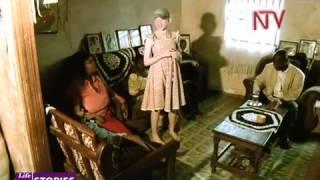 NTV Lifestories - Albinism pt 1