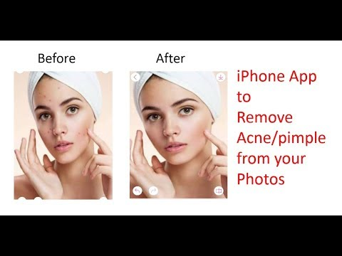 Amazing iphone app to remove acnes from the photos | Beautify the picture