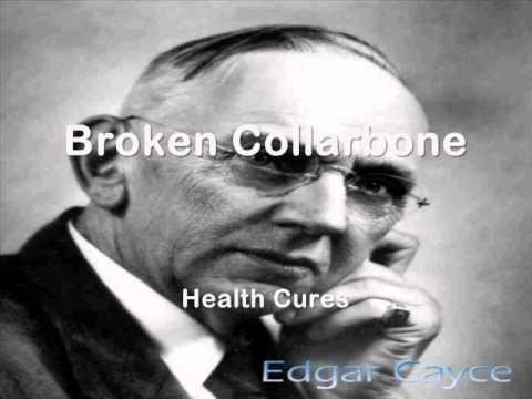 105   Broken Collarbone