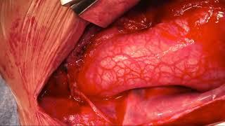 Osman Al-radi: David Operation (aortic Root Replacement With Valve Reimplantation)