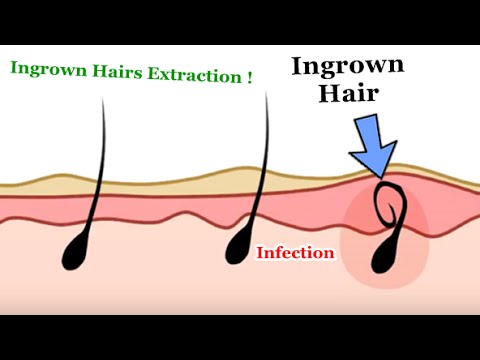Removing Ingrown Hairs  - 2D Animation
