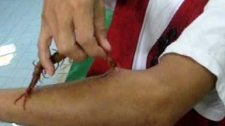Download Centipede Bite.....Unbelievable Video