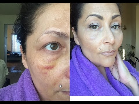 How to Conceal a black eye or surgery bruising & full foundation LOREAL True Match