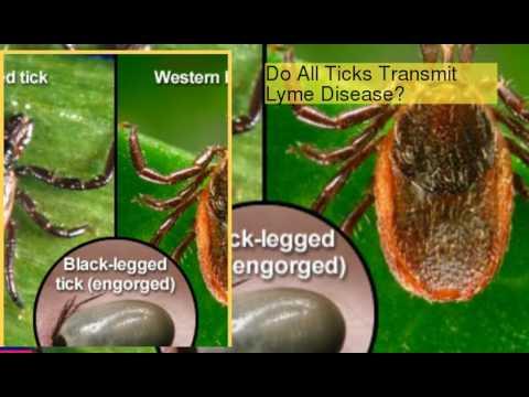 Lyme Disease Symptoms, Causes & Treatments