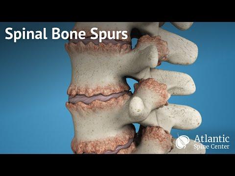 Spinal Bone Spurs