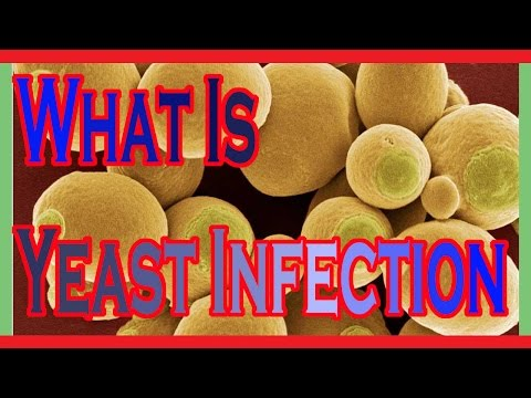 What is yeast infection : How To Cure Yeast Infection