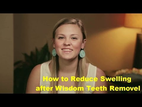 How to Reduce Swelling After Wisdom Teeth Removal Tips For Reduce Swelling With Home Remedies
