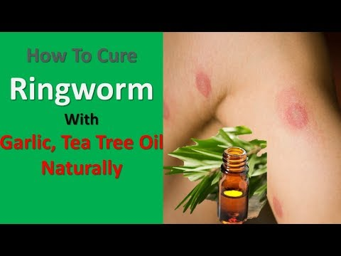 How To Cure Ringworm With Garlic, Tea Tree Oil Naturally