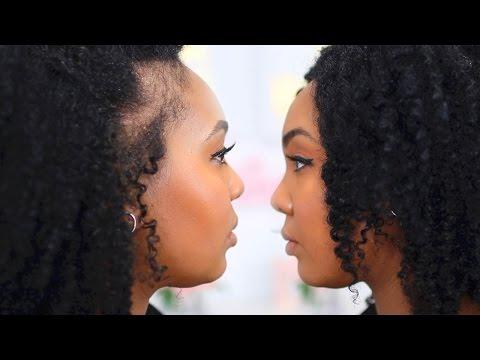 Postpartum Hair Loss & Shedding | Natural Hair