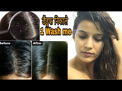 How to Stop Dandruff Fast | Dandruff Treatment | Super Style Tips