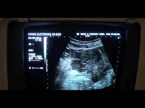 RUPTURED RT ECTOPIC PREGNANCY wth OVARIAN CYST