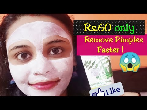 Hindi-REMOVE ACNE / SPOTS QUICKLY | Patanjali Aloevera Neem Cucumber Face Pack DEMO | REVIEW