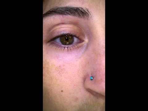 Creepy lower eyelid twitch