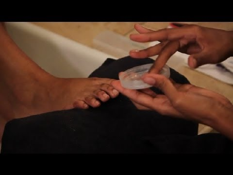 I Have Hard, Black Toenails & Dry, Peeling Feet : Pedicures & Foot Care