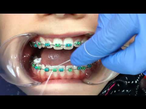 Flossing teeth with braces using a floss threader