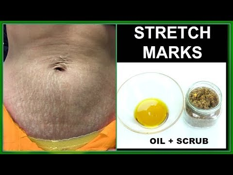 HOW TO GET RID OF STRETCH MARKS & SCARS FAST, SCRUB OIL EXFOLIATE MASSAGE MOISTURIZER |Khichi Beauty