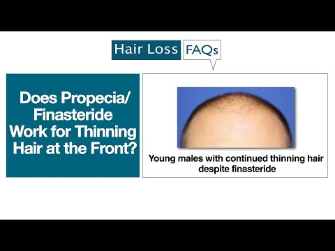 Does Propecia/Finasteride Work for Thinning Hair at the Front?