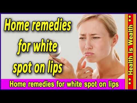 Home remedies for white spot on lips - सफ़ेद दाग के घरेलू उपचार