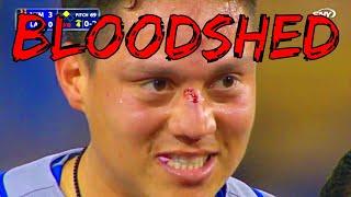 MLB Bloodshed
