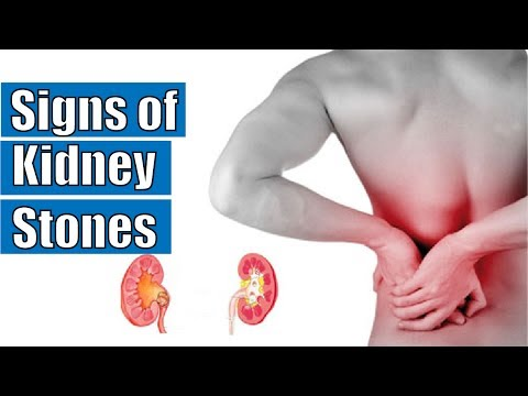 Signs of kidney stones | Symptoms of kidney stones
