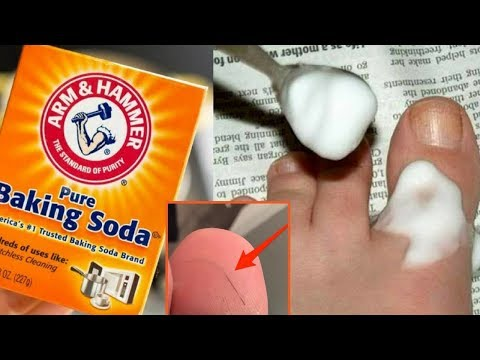 How To Remove a Splinter With Baking Soda | Happy Life