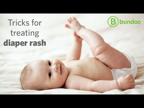 Tricks for treating diaper rash