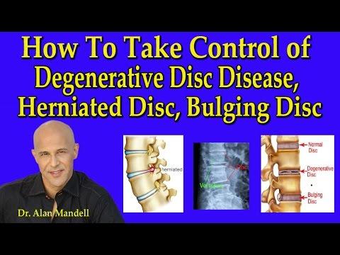 How to Take Control of Degenerative Disc Disease, Herniated Disc, & Bulging Disc - Dr Mandell