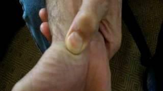 Hemorrhoid Reliefavi