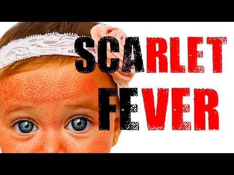 Scarlet Fever - Red Sandpaper Like Rash