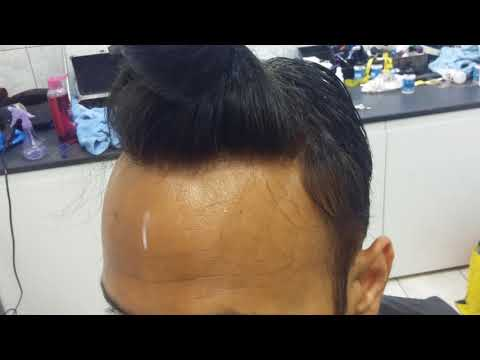 Indian hair replacement system new fitting with Gaurav from India