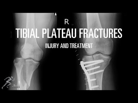 Tibial plateau fracture: Mechanism of injury and treatment options