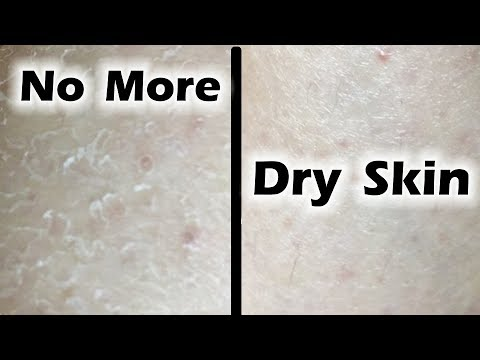 10 Easy Tips to CURE Dry Skin | Winter Skin Care